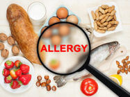 food allergy image